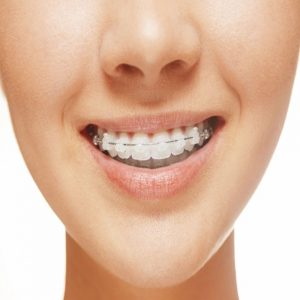 Dentista barato Madrid 28046