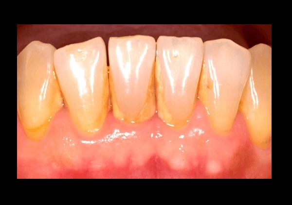 Dentista Madrid Tetuan